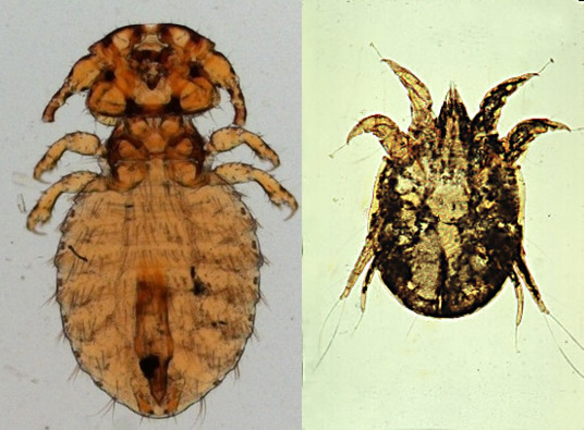 Louse (L) and Mite (R) as viewed under a microscope